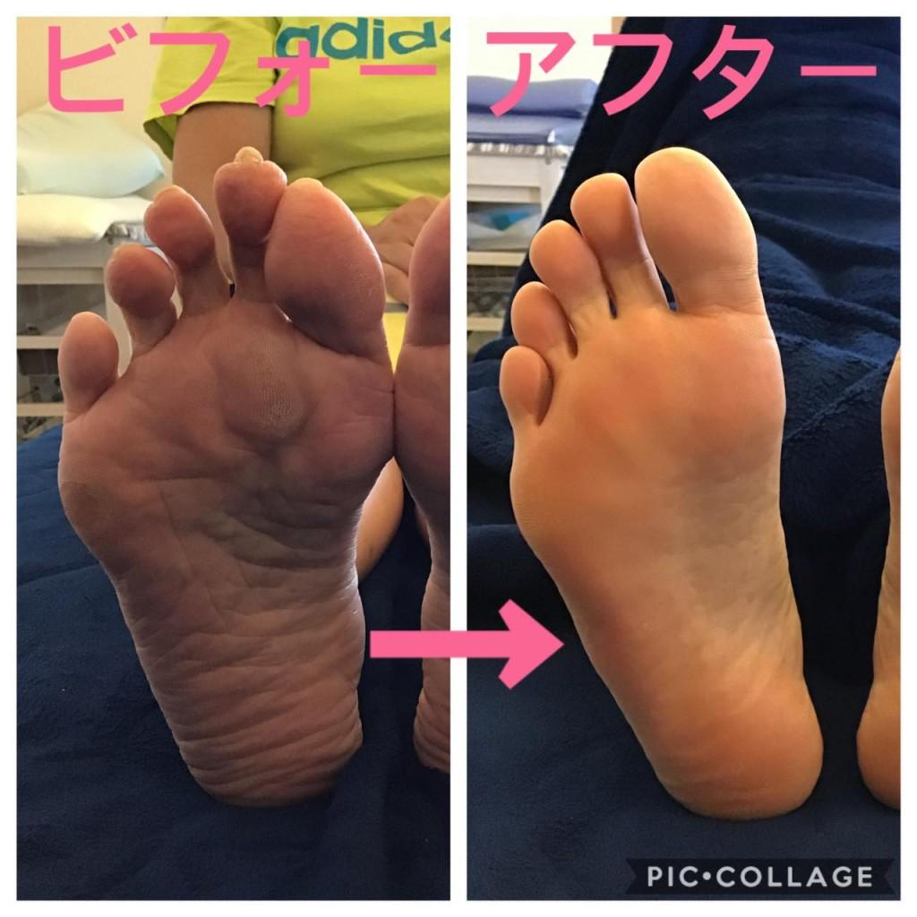 踵の痛み、足底筋膜炎、足底腱膜炎